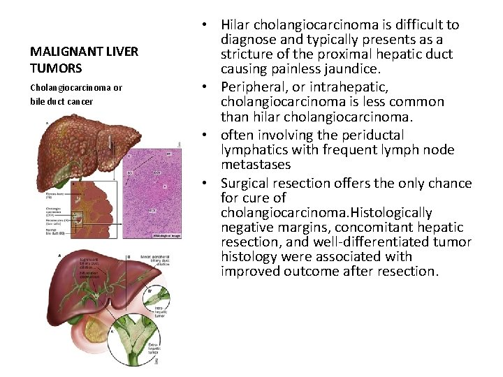 MALIGNANT LIVER TUMORS Cholangiocarcinoma or bile duct cancer • Hilar cholangiocarcinoma is difficult to
