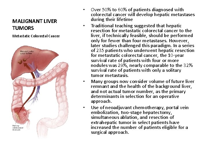 • MALIGNANT LIVER TUMORS • Metastatic Colorectal Cancer • • Over 50% to