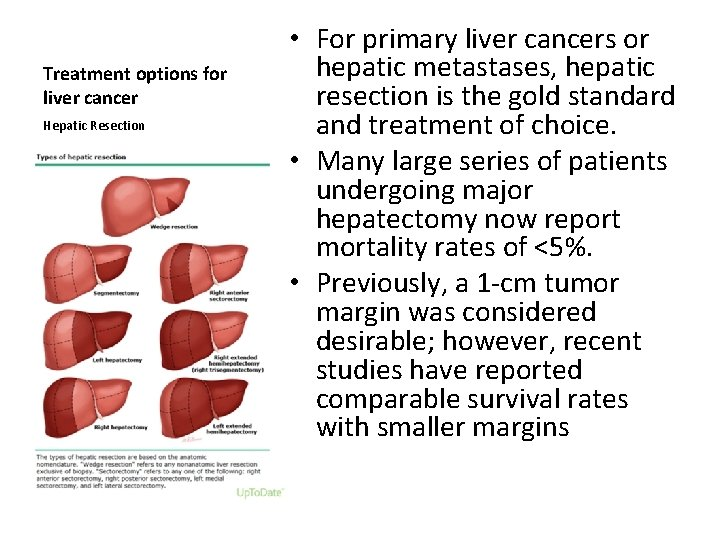 Treatment options for liver cancer Hepatic Resection • For primary liver cancers or hepatic