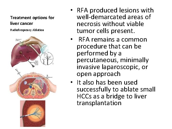 Treatment options for liver cancer Radiofrequency Ablation • RFA produced lesions with well demarcated