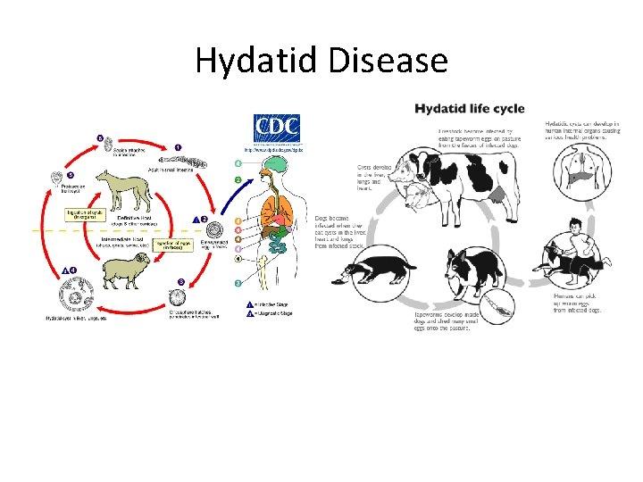 Hydatid Disease