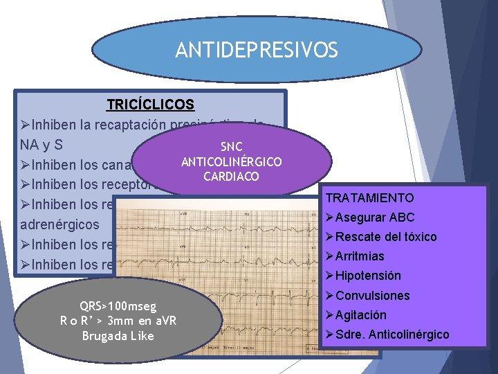 ANTIDEPRESIVOS TRICÍCLICOS ØInhiben la recaptación presináptica de NA y S SNC ANTICOLINÉRGICO ØInhiben los