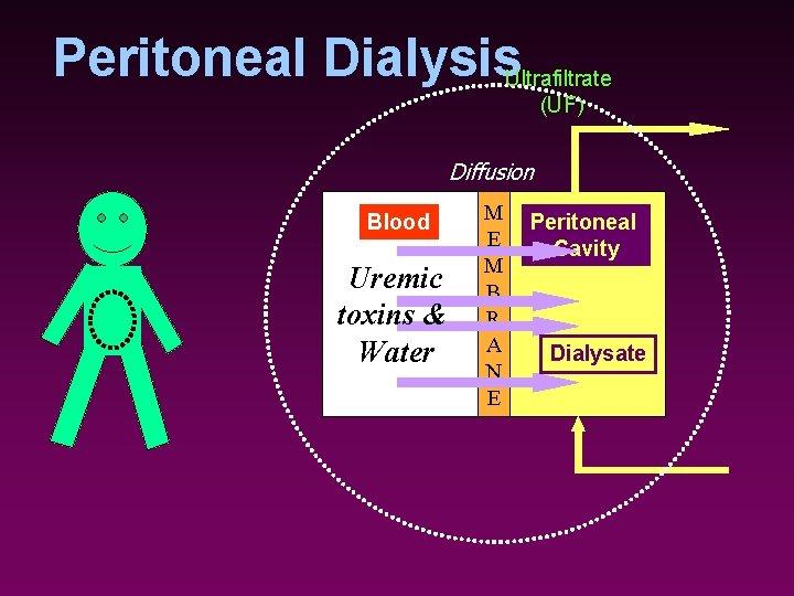 Peritoneal Dialysis. Ultrafiltrate (UF) Diffusion Blood Uremic toxins & Water M E M B