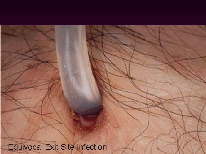 Infection 1. Exit site infection & Tunnel infection - common cause: staph. aureus -