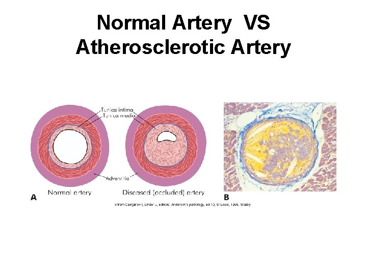 Normal Artery VS Atherosclerotic Artery