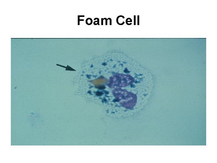 Foam Cell