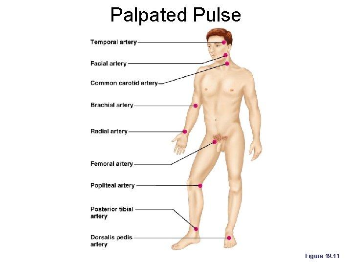 Palpated Pulse Figure 19. 11