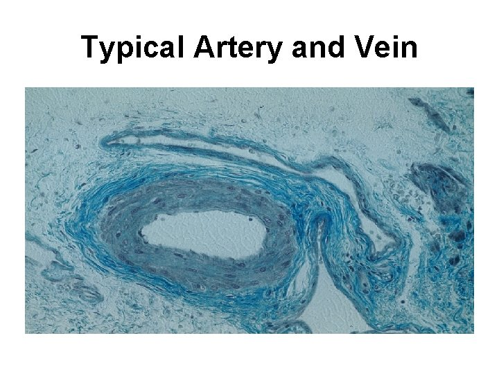 Typical Artery and Vein