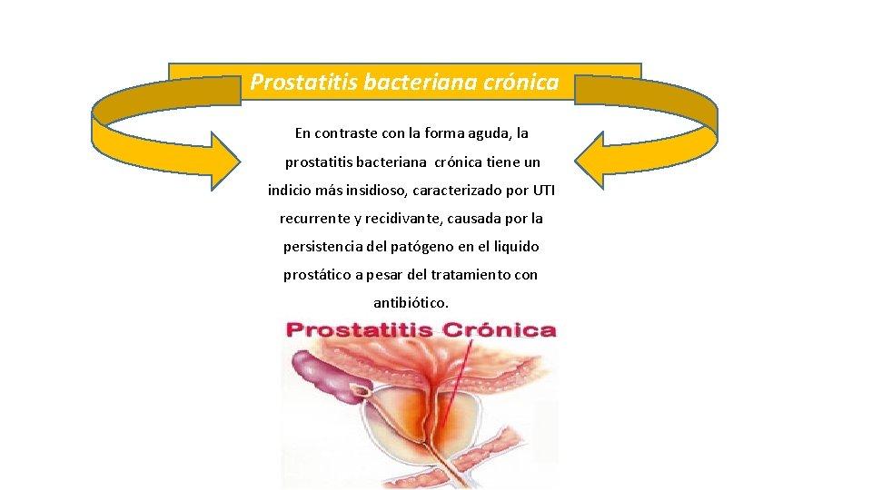 A prosztata hiperplázia rák vagy sem