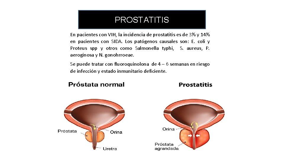 Prostatitis és poliuria)