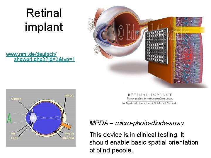 Retinal implant www. nmi. de/deutsch/ showprj. php 3? id=3&typ=1 MPDA – micro-photo-diode-array This device