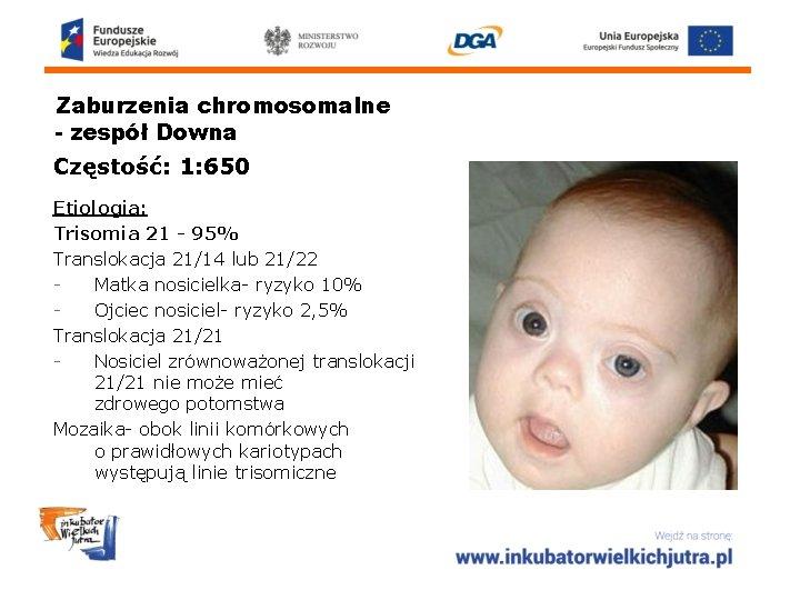 Zaburzenia chromosomalne - zespół Downa Częstość: 1: 650 Etiologia: Trisomia 21 - 95% Translokacja
