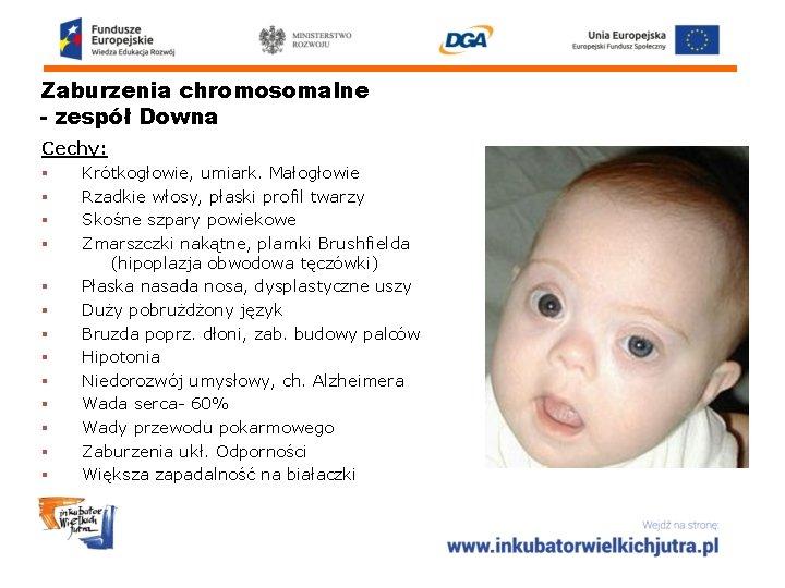 Zaburzenia chromosomalne - zespół Downa Cechy: § Krótkogłowie, umiark. Małogłowie § Rzadkie włosy, płaski