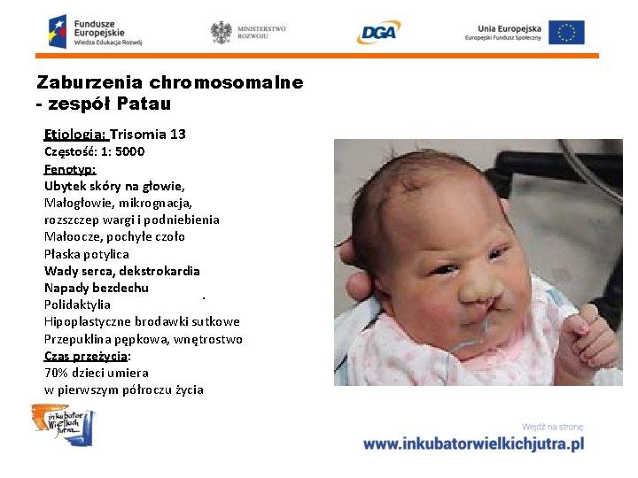 Zaburzenia chromosomalne - zespół Patau Etiologia: Trisomia 13 Częstość: 1: 5000 Fenotyp: Ubytek skóry