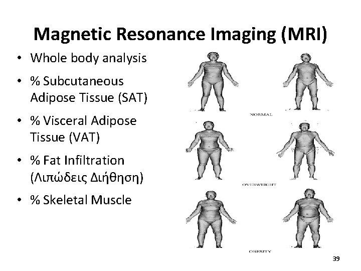 Magnetic Resonance Imaging (MRI) • Whole body analysis • % Subcutaneous Adipose Tissue (SAT)