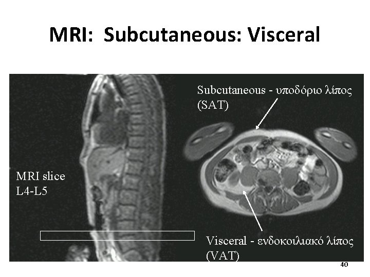 MRI: Subcutaneous: Visceral Subcutaneous - υποδόριο λίπος (SAT) MRI slice L 4 -L 5
