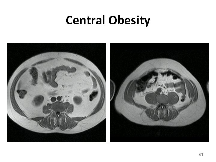 Central Obesity 41
