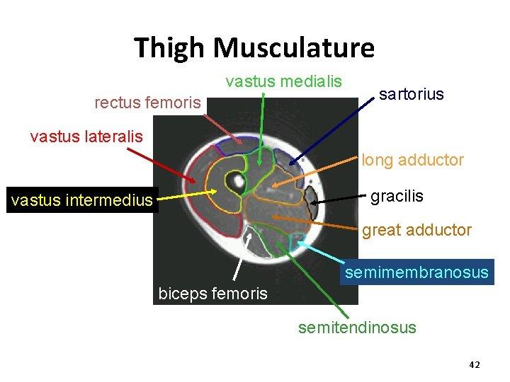Thigh Musculature vastus medialis rectus femoris sartorius vastus lateralis long adductor gracilis vastus intermedius