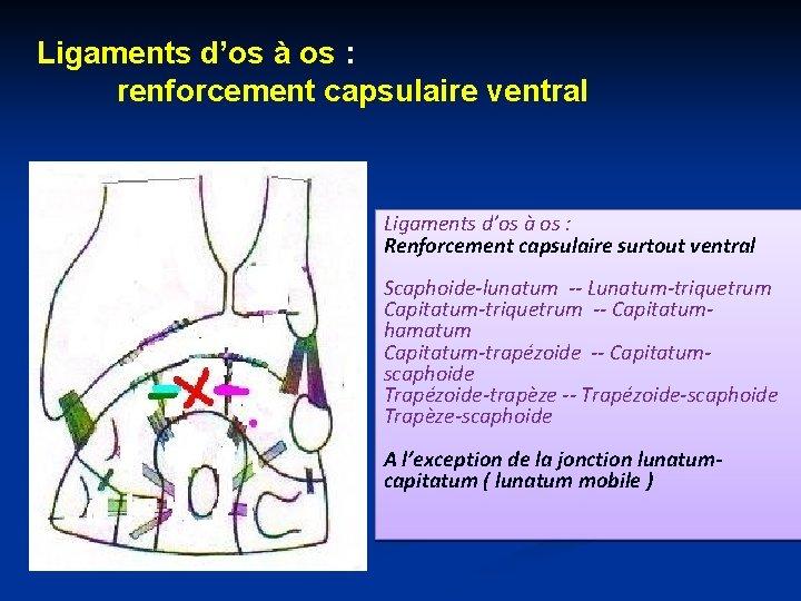 Ligaments d'os à os : renforcement capsulaire ventral Ligaments d'os à os : Renforcement