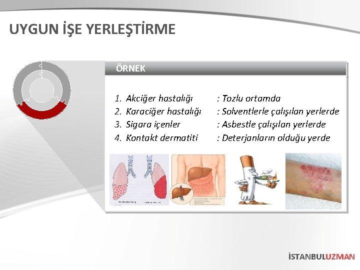 UYGUN İŞE YERLEŞTİRME ÖRNEK 1. 2. 3. 4. Akciğer hastalığı Karaciğer hastalığı Sigara içenler