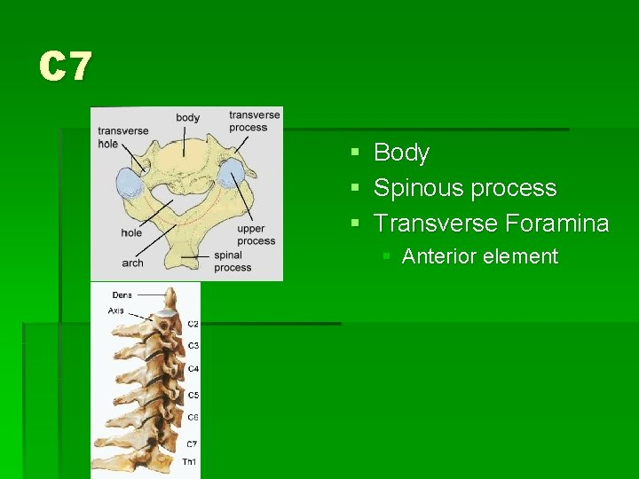 C 7 § Body § Spinous process § Transverse Foramina § Anterior element