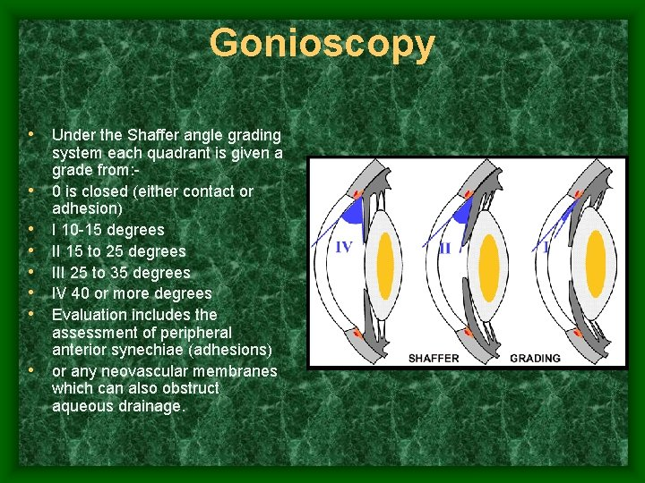 Gonioscopy • Under the Shaffer angle grading • • system each quadrant is given