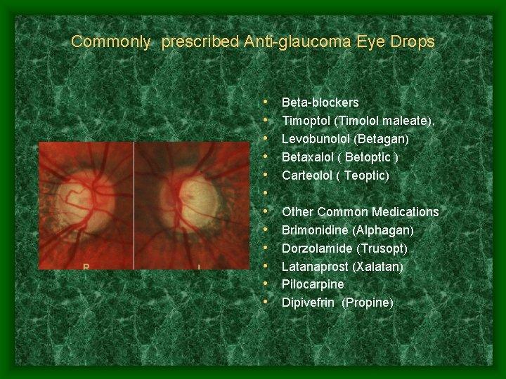 Commonly prescribed Anti-glaucoma Eye Drops • • • Beta-blockers Timoptol (Timolol maleate), Levobunolol (Betagan)