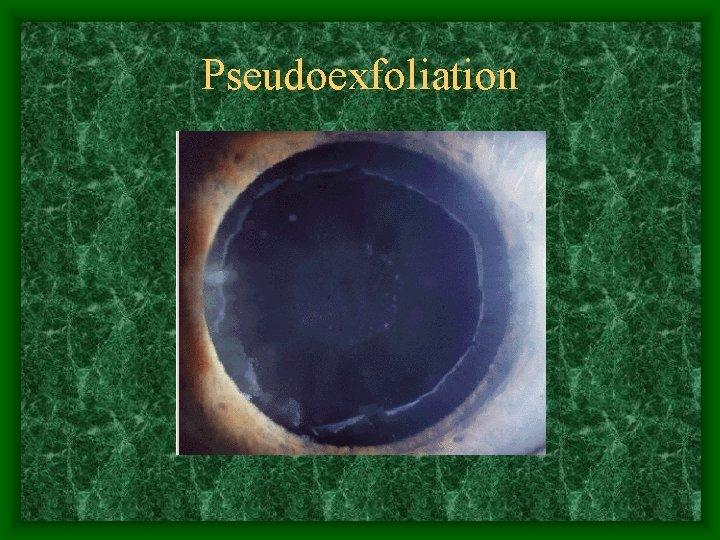 Pseudoexfoliation
