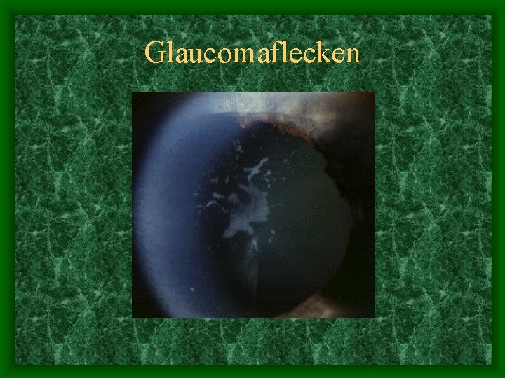 Glaucomaflecken