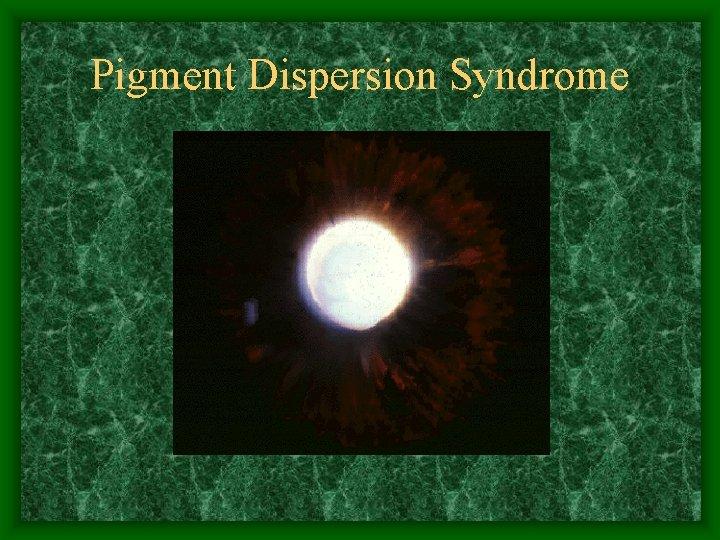 Pigment Dispersion Syndrome