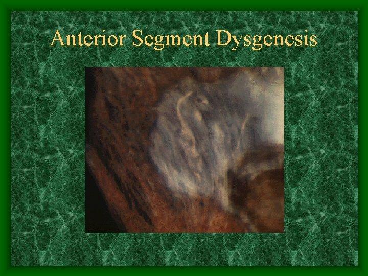 Anterior Segment Dysgenesis