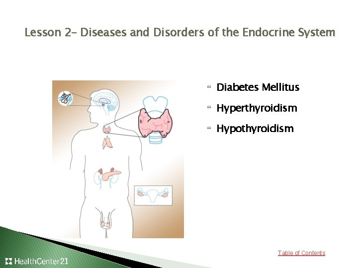 Lesson 2– Diseases and Disorders of the Endocrine System Diabetes Mellitus Hyperthyroidism Hypothyroidism Table