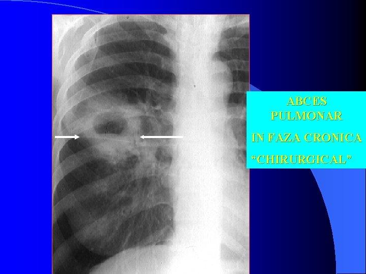 simptomele invaziei pulmonare