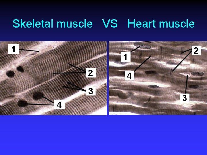 Skeletal muscle VS Heart muscle