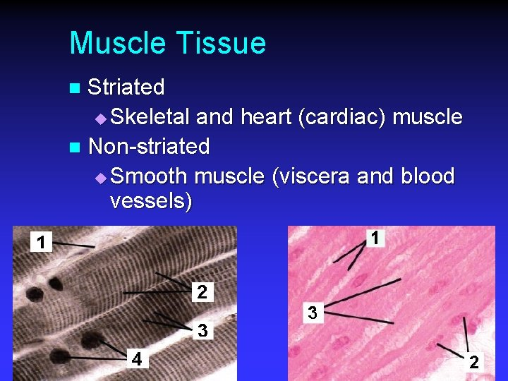 Muscle Tissue Striated u Skeletal and heart (cardiac) muscle n Non-striated u Smooth muscle