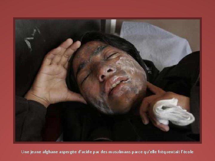 Une jeune afghane aspergée d'acide par des musulmans parce qu'elle fréquentait l'école