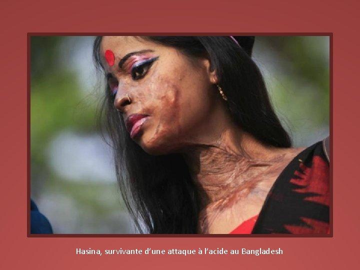 Hasina, survivante d'une attaque à l'acide au Bangladesh