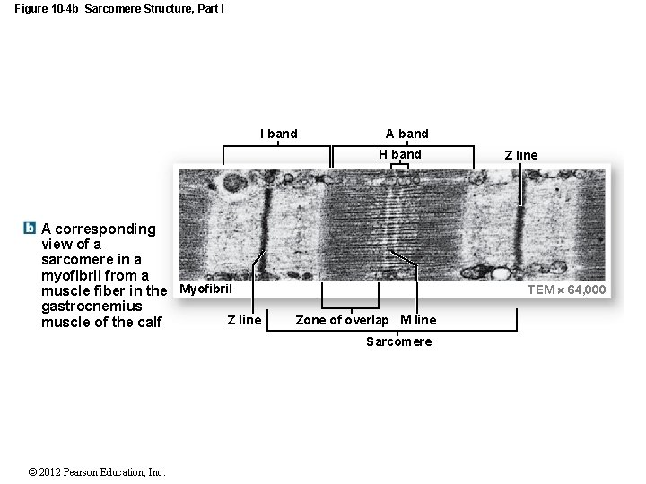 Figure 10 -4 b Sarcomere Structure, Part I I band A band H band