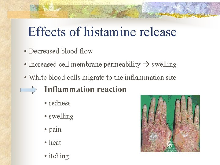 Effects of histamine release • Decreased blood flow • Increased cell membrane permeability swelling