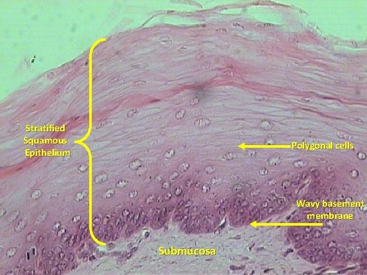 Stratified Squamous Epithelium Polygonal cells Wavy basement membrane Submucosa