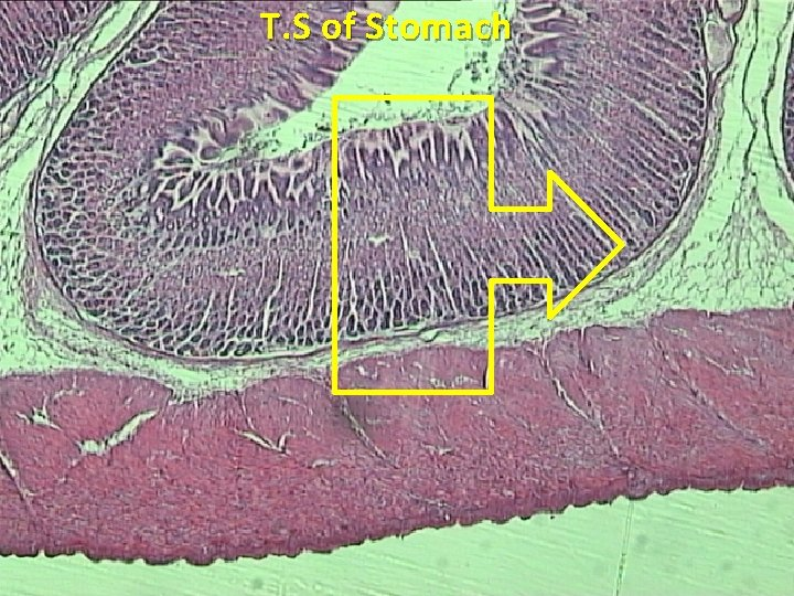 T. S of Stomach