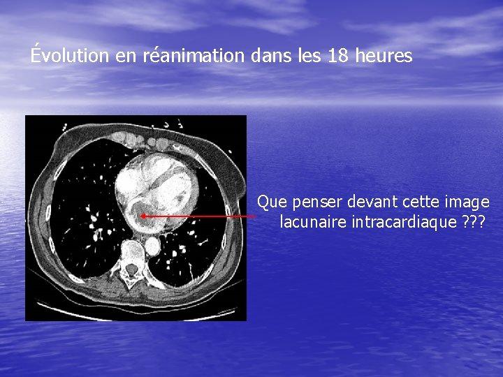 Évolution en réanimation dans les 18 heures Que penser devant cette image lacunaire intracardiaque