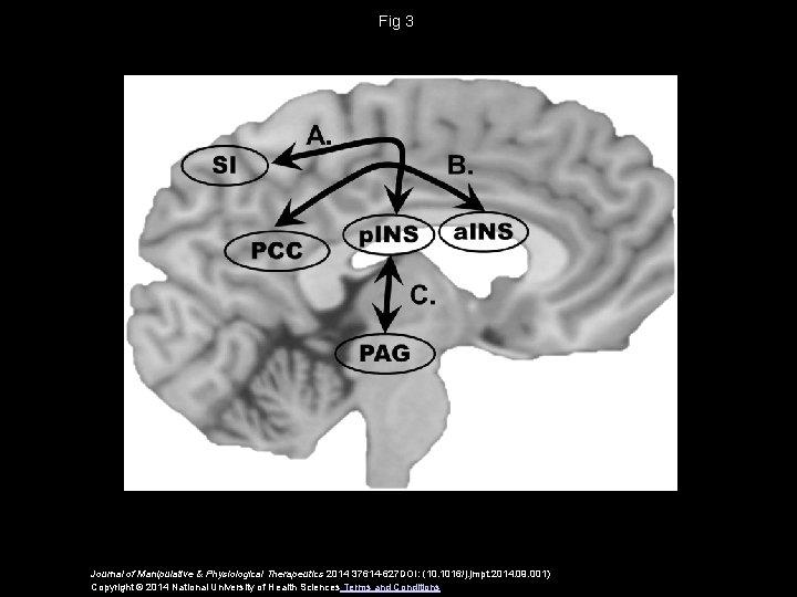 Fig 3 Journal of Manipulative & Physiological Therapeutics 2014 37614 -627 DOI: (10. 1016/j.