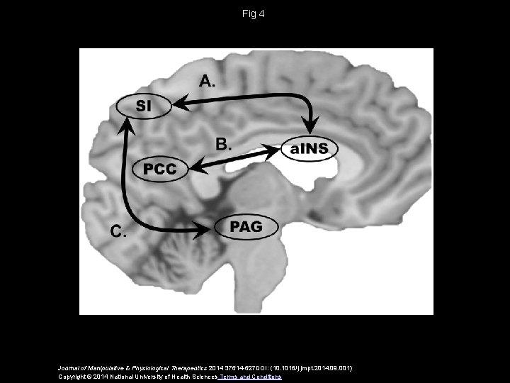 Fig 4 Journal of Manipulative & Physiological Therapeutics 2014 37614 -627 DOI: (10. 1016/j.