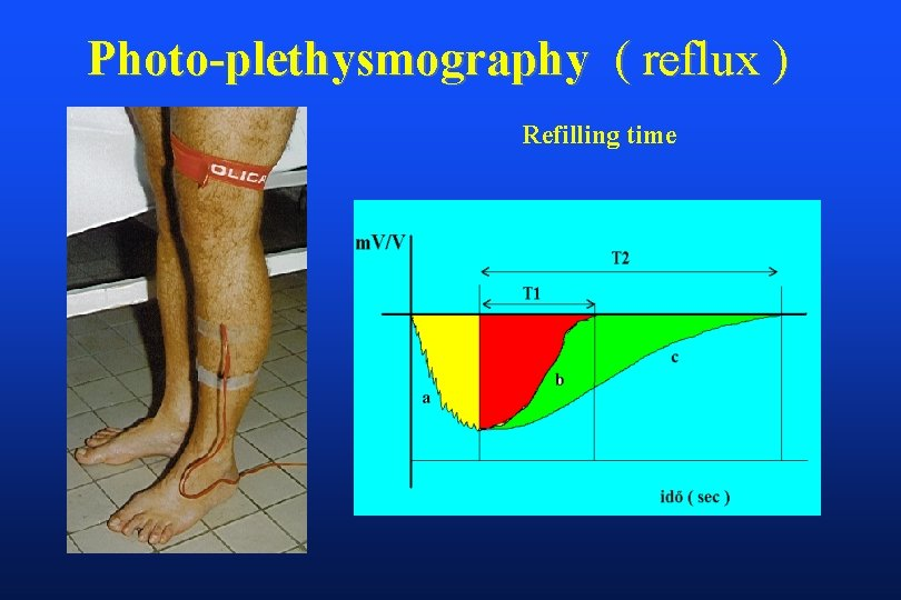 Photo-plethysmography ( reflux ) Refilling time