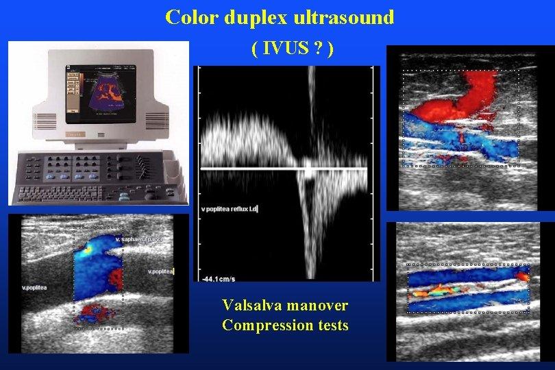 Color duplex ultrasound ( IVUS ? ) Valsalva manover Compression tests