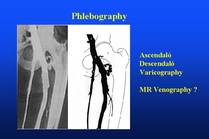 Phlebography Ascendaló Descendaló Varicography MR Venography ?