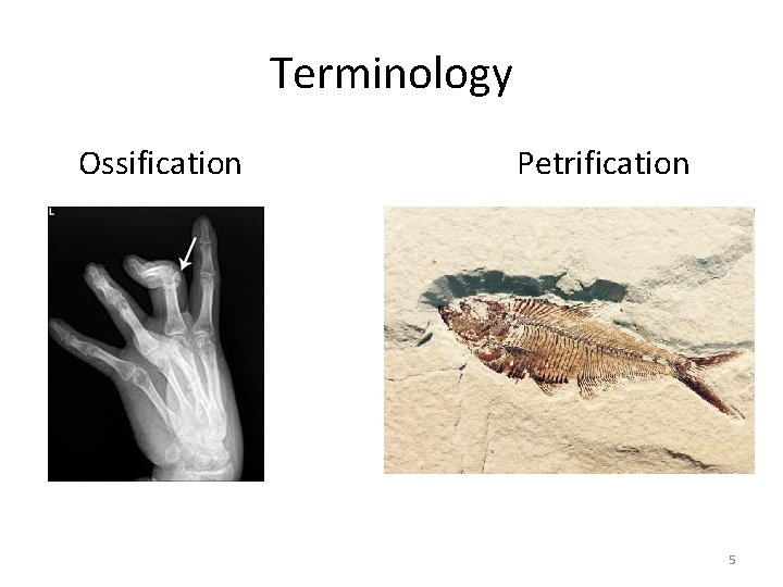 Terminology Ossification Petrification 5
