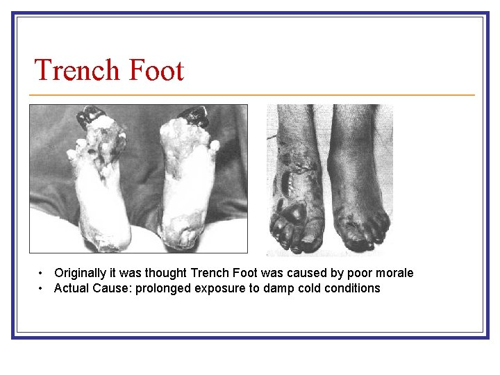 Trench Foot • Originally it was thought Trench Foot was caused by poor morale