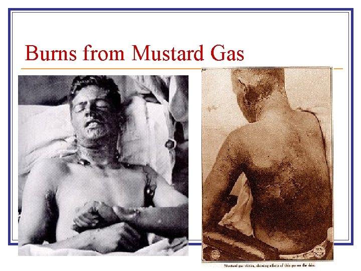 Burns from Mustard Gas
